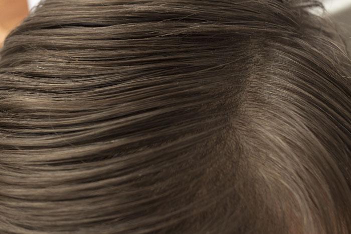 なぜ頭皮が乾燥するの?