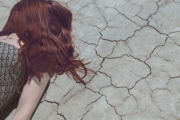 馬油シャンプーの効果2:頭皮の乾燥を防ぎフケやかゆみを防止!