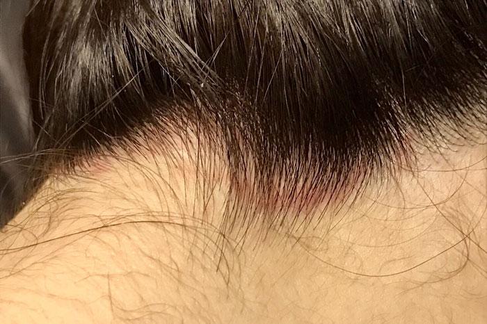 脂漏性皮膚炎(湿疹)に馬油シャンプーはおすすめ?その理由は?